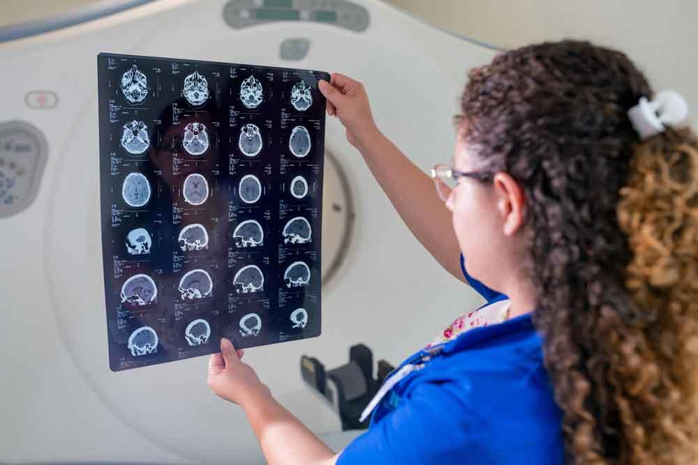 resonancia magnética epilepsia