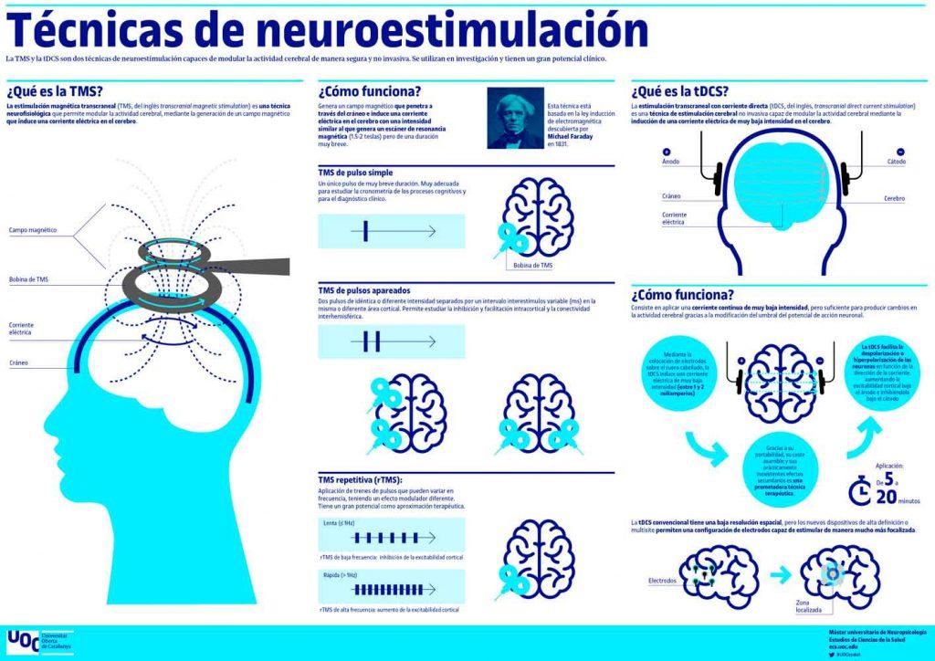 tecnicas de neuroestimulacion