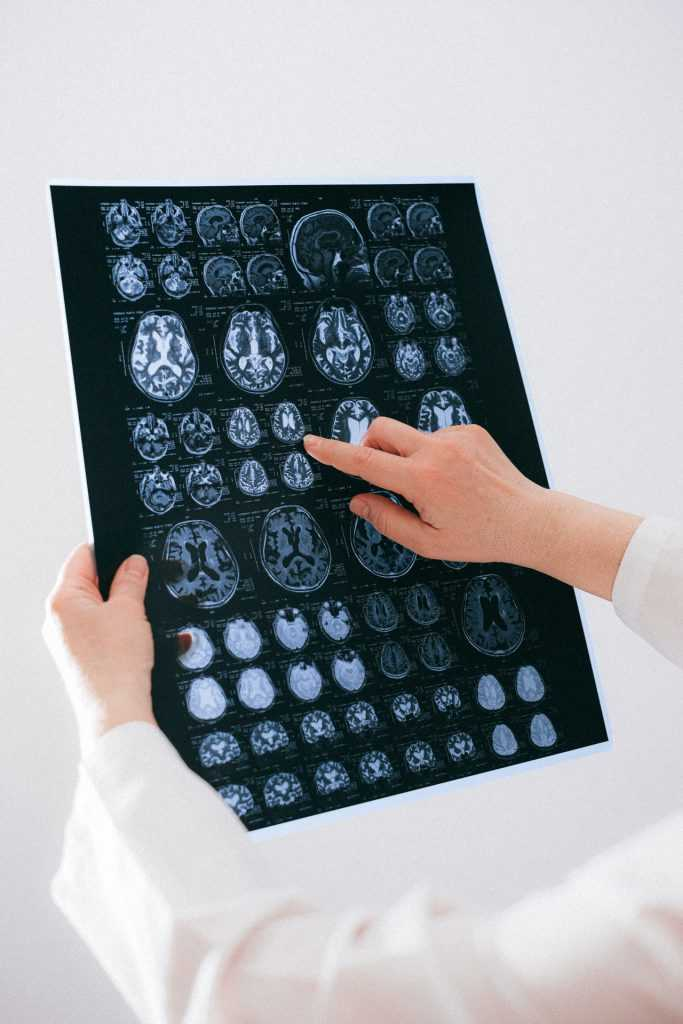 5 preguntas y respuestas sobre la neuropsicología